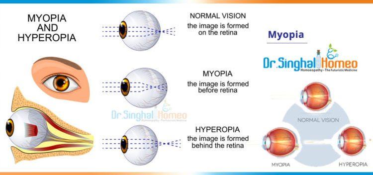 myopia-2