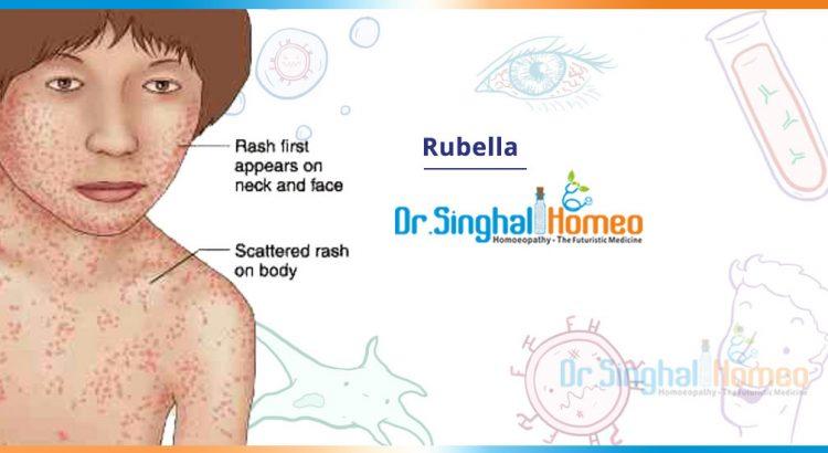 rubella-2