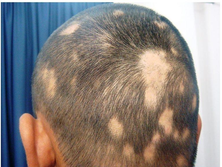 alopeciaareata