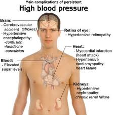 Homeopathic Medicine for Hypertension