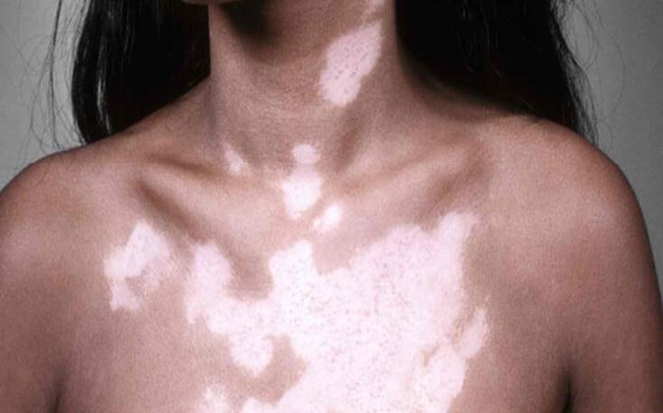 Best Skin diseases treatment in Mumbai