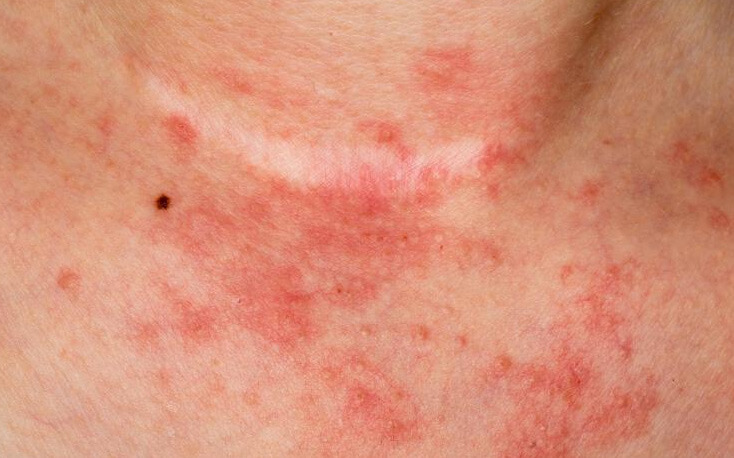 Best Homeopathy Doctor and Treatment for Eczema