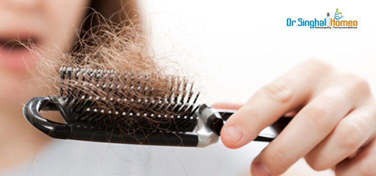 Best homeopathy doctor and treatment for hair-loss/ hair-fall in New Delhi