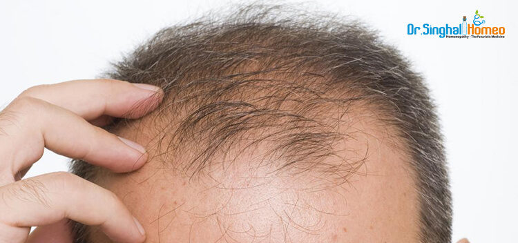 How to stop hair fall and tips to control with Homeopathic Treatment