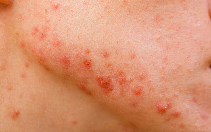 best homeopathy treatment for pimples in New Delhi