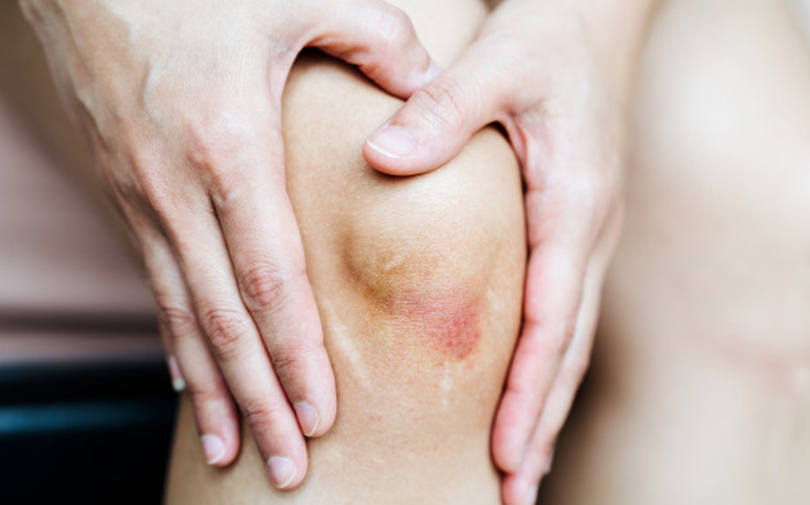 Best Homeopathic Treatment for Joint Pain in Mumbai