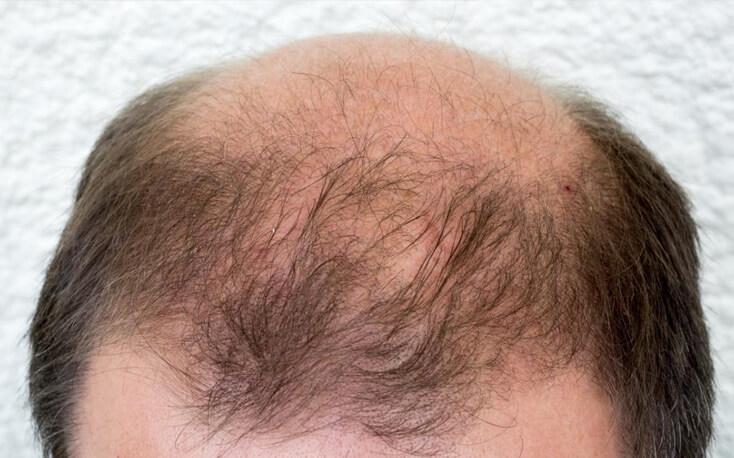 Best Homeopathic Treatment for Baldness in Palampur