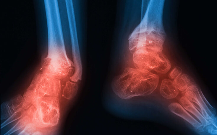 bone-infection