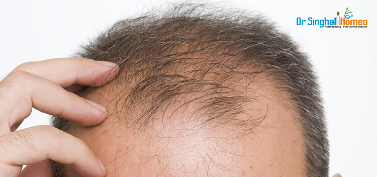 Hair Fall in Mumbai