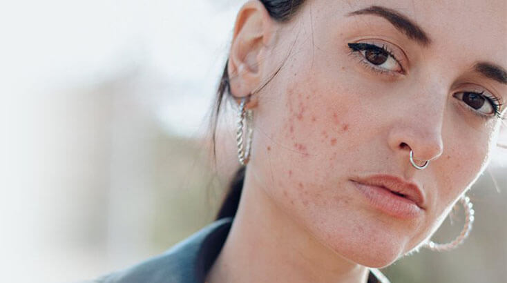 Doctor and Treatment for Acne & Pimple in Patiala