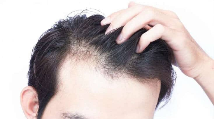 Doctor for Baldness in Shimla