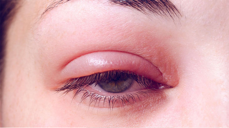 Doctor for Chalazion in Ludiana