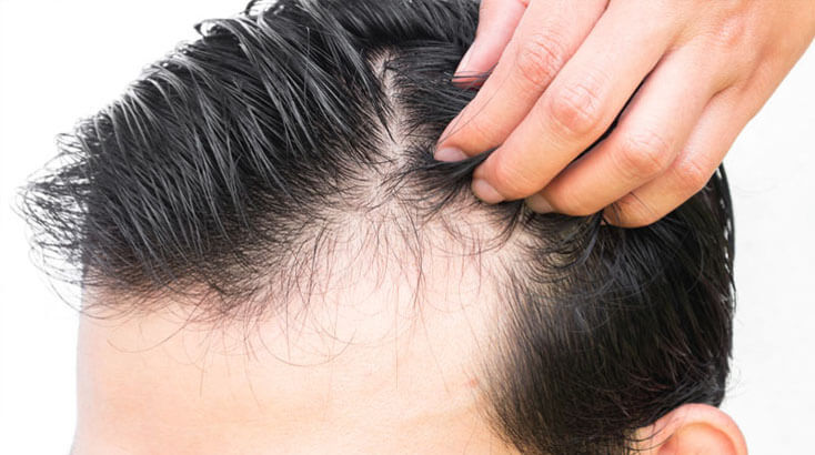 Best Homeopathy Doctor and Treatment for Hair Fall in Chandigarh