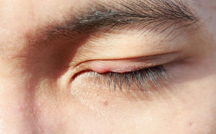 Best Homeopathy Doctor and Treatment For Chalazion in Chandigarh