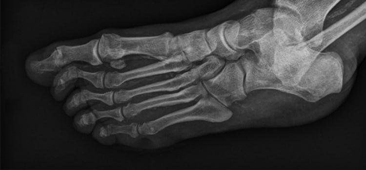 Osteomyelitis Disease