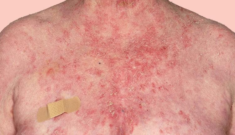Pemphigus Vulgaris- Homeopathy Treatment