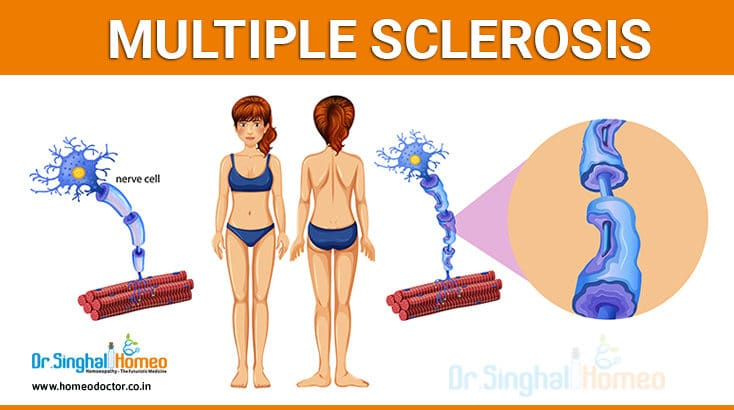 Homeopathic treatment for Multiple Sclerosis